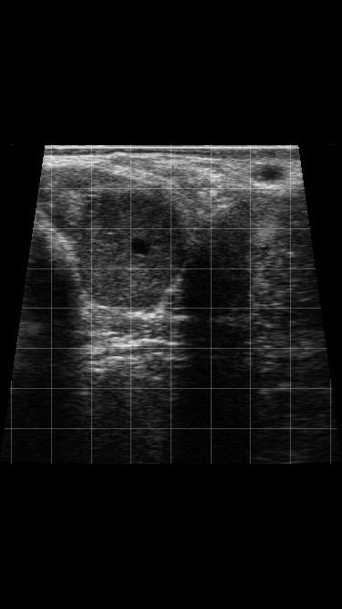 Pregnancy Rate - Scanning